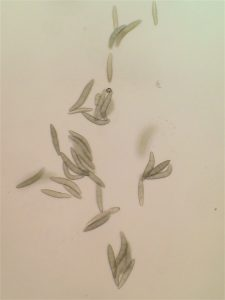 Figure 2. A photo-micrograph of spores produced by the NCLB fungus.
